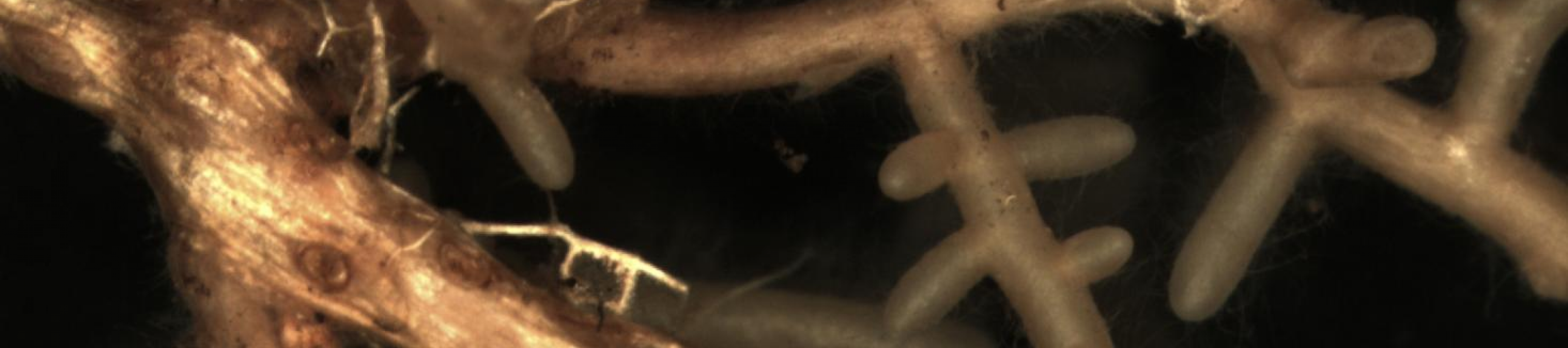 Microscope image of mycorrhizas